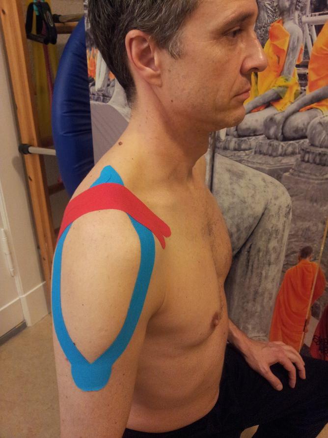 Anleitung für Kinesiotape Schulter Ansicht seitlich frontal